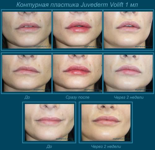 Через сколько проходит отек после увеличения губ