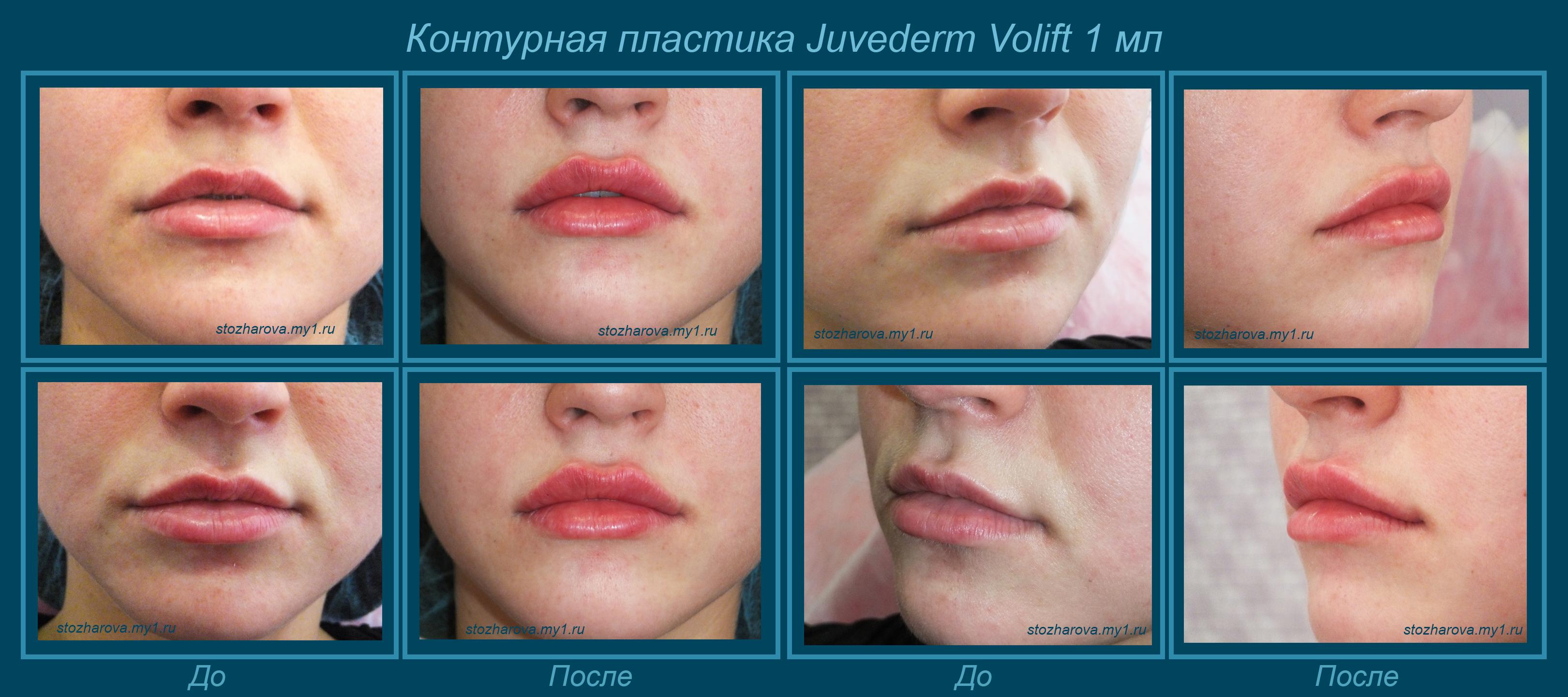 Пластика уздечки верхней губы: зачем нужно подрезание 61